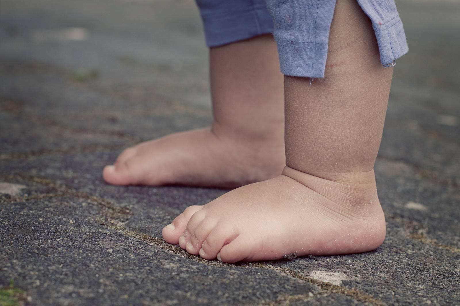 Qu'est-ce que les pieds plats ? Comment les soigner ?